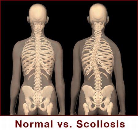 Il fissaggio giperostoz reparto di petto di una spina dorsale