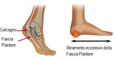 stiramento-fascia-plantare-fascite